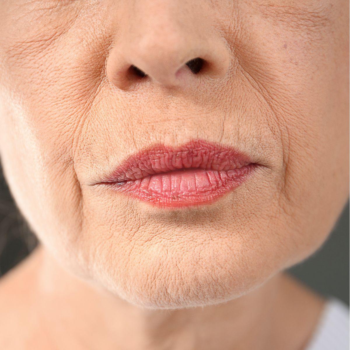 arrugas faciales estaticas