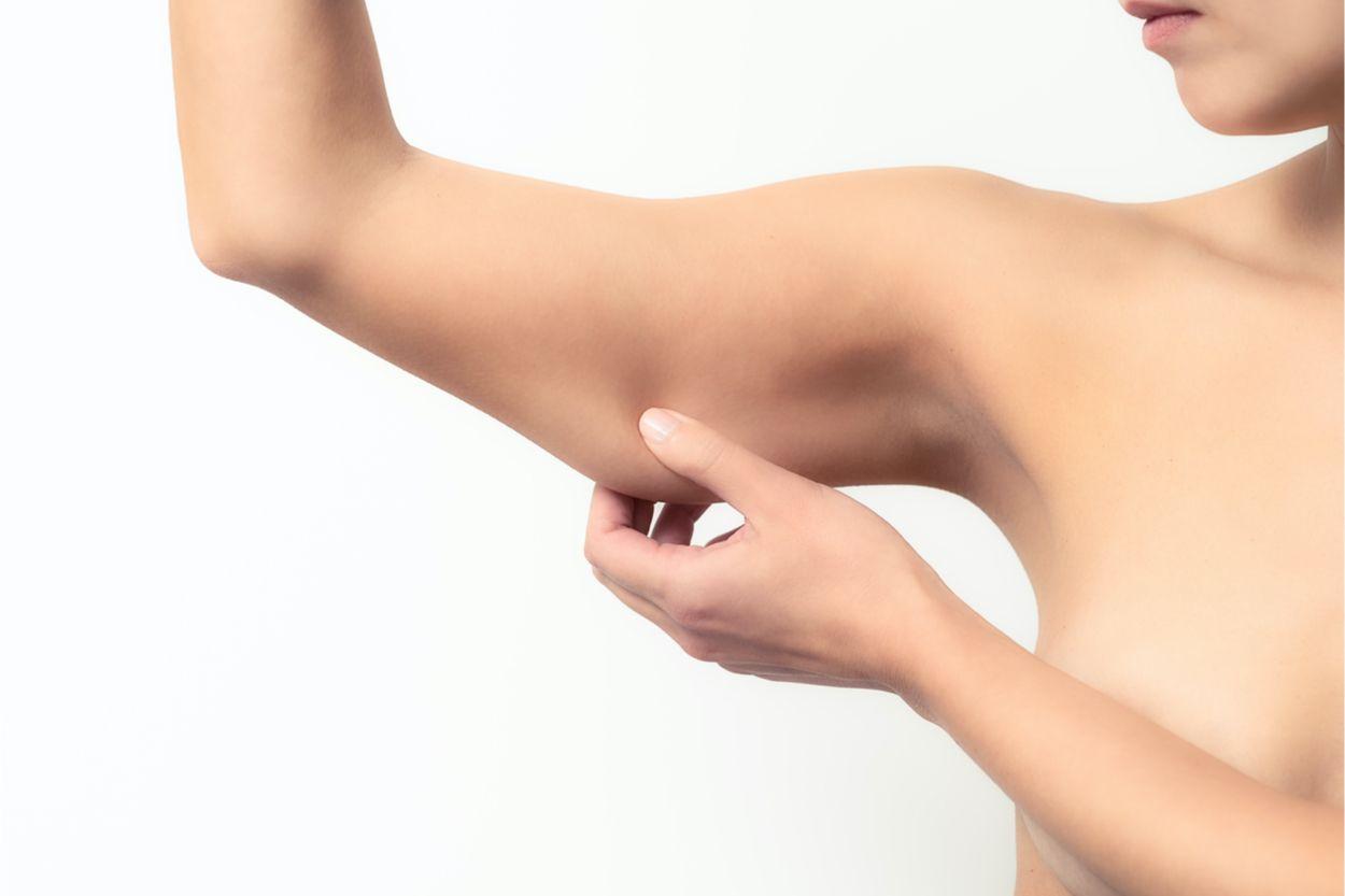 flacidez brazos
